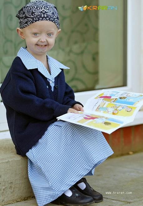 progeria-child
