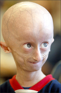 Progeria1